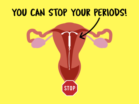you-can-stop-your-periods-iud